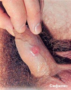 Болит грудь после месячных. Описание: На этих фотографиях вы видите сифили